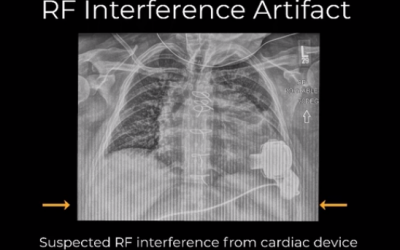 RF Interference – Case 1